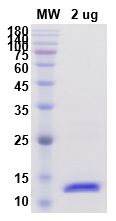 Recombinant Human IL2 protein ,C- His TagPicture1