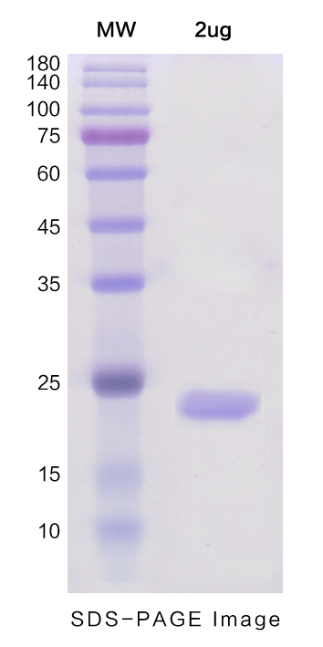 Recombinant Human IL1A protein ,N- His TagPicture1