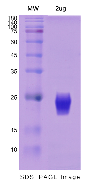 Recombinant Human IL3 protein ,C- His TagPicture1